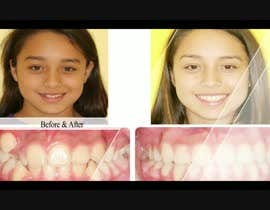 #9 cho create a video movie for before and after dental cases for Mall advertising bởi rizwansarwarcg