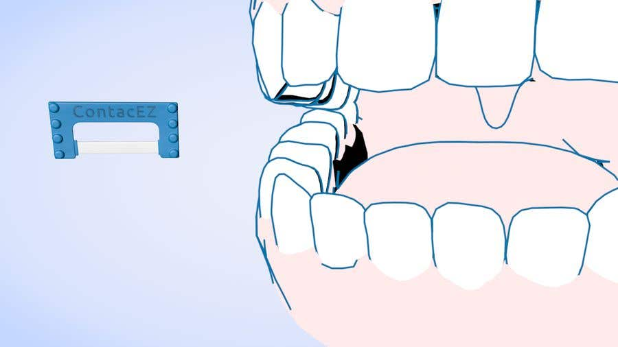 Contest Entry #21 for Create an Animation for Dental Customers showing the IPR tool.