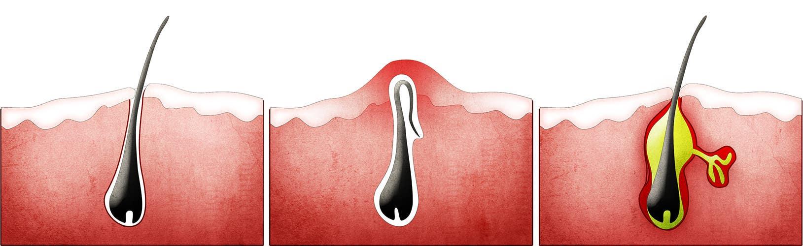 Konkurrenceindlæg #                                        1                                      for                                         Illustration Design for Ingrown Hair