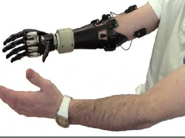 artificial hand that can move with your hand signals ...... .................................................................................................................................................................................................................................................. ...................................................................................................................................................................................................................................................... .................................................................................................................................................................................................................................................................................................................................................................................................................................. ...............................