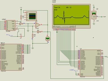 Project Full Title Multi-parameter microcontroller based patient monitor with graphical display and ECG simulator.  The Project Objective: Is to design a real time system that can measure the ECG, heart rate, SPO2, body temperature and blood pressure.   My role  Master Course project, to develop the system fully. it consisted of many connected microcontrollers and master controller that has the system display attached to it. Also it had a real time ECG simulator that produces a signal that mimics human ECG, it was embedded for calibration   The Overall Success:  The real time systems are sometimes parameterized with their refresh rate, which is the speed of updating the results and my system had 0.5 Seconds for the overall system parameters, except for the blood pressure because it consumes long time to produce a single reading (nearly 40s), but, still the result was very good result for such a small system